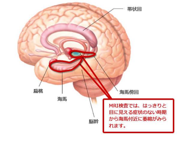 MRI検査では、はっきりと目に見える症状のない時期から病気による海馬付近に萎縮がみられます。